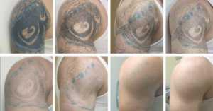como remover tatuagem naturalmente